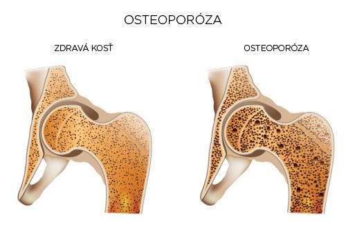 Je osteoporóza nezvratná?