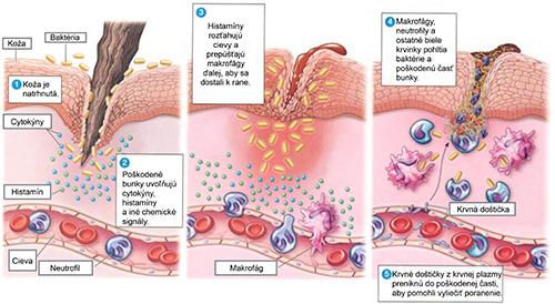 Zápalové reakcie v ľudskom tele.