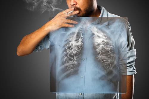 Ako vyzerajú ľudské pľúca po jednom balíčku cigariet?